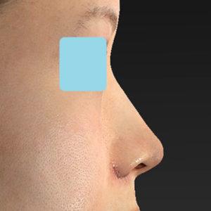 「耳介軟骨移植+鼻尖縮小(close法)+小鼻縮小+α」 新宿ラクル美容外科クリニック 30代女性 手術直後 9月19日