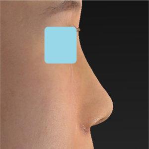 「小鼻縮小+α+鼻尖縮小(close法)+鼻プロテーゼ隆鼻術」 新宿ラクル美容外科クリニック 20代女性 手術後1週間目 9月14日