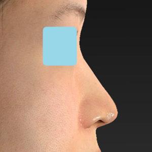 「耳介軟骨移植+鼻尖縮小(close法)+小鼻縮小+α」 新宿ラクル美容外科クリニック 30代女性 手術後1ヶ月目 9月19日