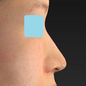 「耳介軟骨移植+鼻尖縮小(close法)+小鼻縮小+α」 新宿ラクル美容外科クリニック 30代女性 手術後6ヶ月目 9月19日