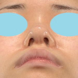 「鼻中隔延長+耳介軟骨移植+鼻尖形成+猫手術+貴族手術」 新宿ラクル美容外科クリニック 20代女性 手術前 10月12日