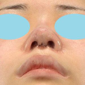 「鼻中隔延長+耳介軟骨移植+鼻尖形成+猫手術+貴族手術」 新宿ラクル美容外科クリニック 20代女性 手術直後 10月12日