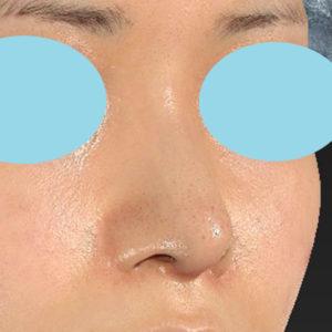 「鼻中隔延長+耳介軟骨移植+鼻尖形成+猫手術+貴族手術」 新宿ラクル美容外科クリニック 20代女性 手術後2週間目 10月12日