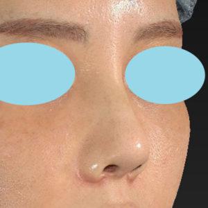 「耳介軟骨移植+鼻尖縮小(close法)+小鼻縮小+α +貴族手術+鼻プロテーゼ入れ替え」 新宿ラクル美容外科クリニック 30代女性 手術後1ヶ月目 10月19日