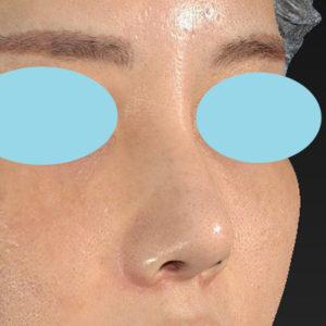 「耳介軟骨移植+鼻尖縮小(close法)+小鼻縮小+α +貴族手術+鼻プロテーゼ入れ替え」 新宿ラクル美容外科クリニック 30代女性 手術後2ヶ月目 10月19日