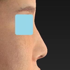 「耳介軟骨移植+鼻尖縮小(close法)+小鼻縮小+α +貴族手術+鼻プロテーゼ入れ替え」 新宿ラクル美容外科クリニック 30代女性 手術前 10月19日