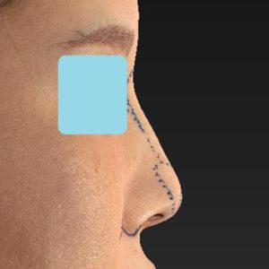 「耳介軟骨移植+鼻尖縮小(close法)+小鼻縮小+α +貴族手術+鼻プロテーゼ入れ替え」 新宿ラクル美容外科クリニック 30代女性 デザイン 10月19日