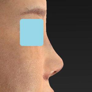 「耳介軟骨移植+鼻尖縮小(close法)+小鼻縮小+α +貴族手術+鼻プロテーゼ入れ替え」 新宿ラクル美容外科クリニック 30代女性 手術直後 10月19日