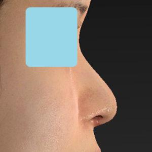 「鼻中隔延長+耳介軟骨移植+鼻尖形成+猫手術+貴族手術」 新宿ラクル美容外科クリニック 20代女性 手術後1週間目 10月12日