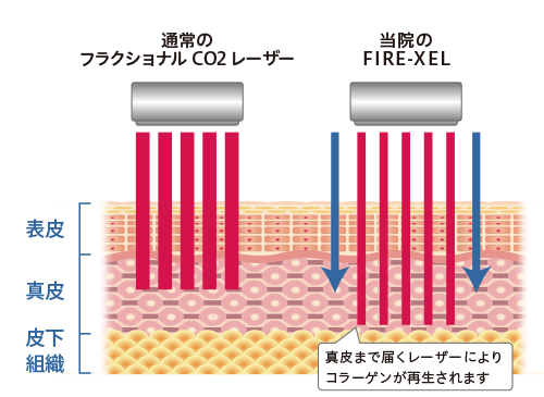 通常のフラクショナルCO2レーザーとの違い