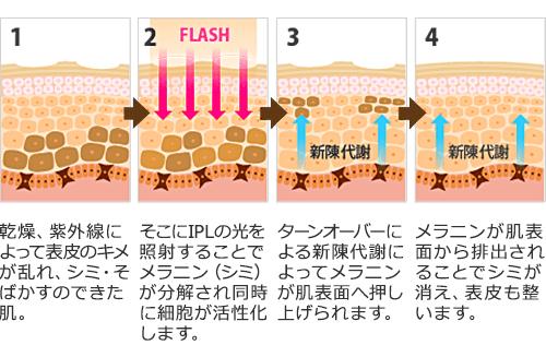 M22照射による肌のターンオーバーのイメージ
