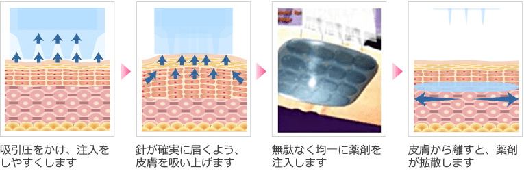 ダーマクイーンのメカニズム イメージ