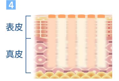 照射後の肌の入れ替わりイメージ